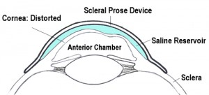 Scleral Lens - Prose Device