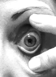 Control of your eye lids | ScleralLensAssociates.com